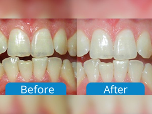 before after dental treatment bangalore