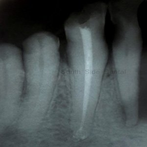 root canal treatment rct